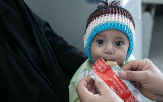 Millions of children in Yemen are at risk of being malnourished. Send life-saving Plumpy'Nut to help children survive.